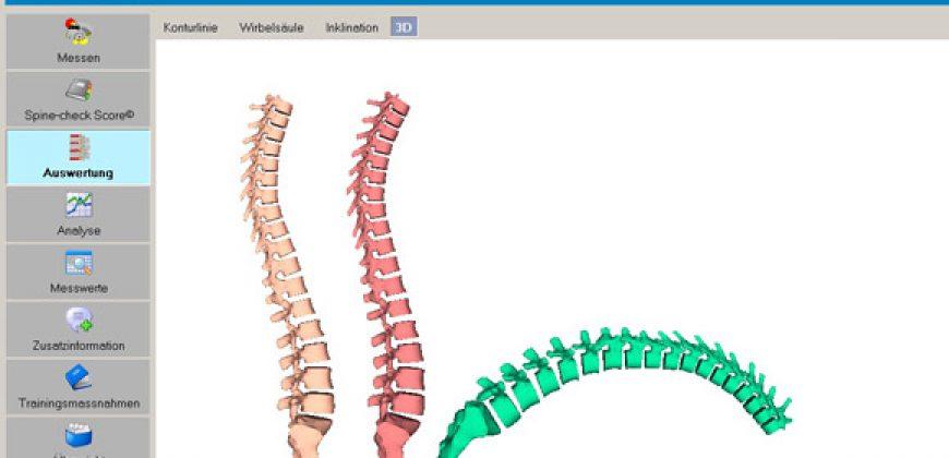 Dispozitiv Spinal Mouse